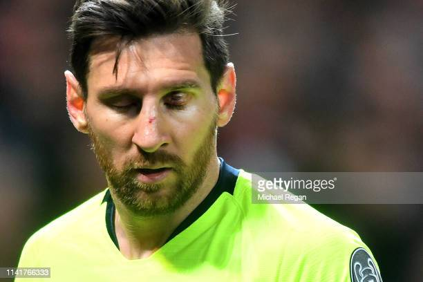An injured Lionel Messi of Barcelona during the UEFA Champions League Quarter Final first leg match between Manchester United and FC Barcelona at Old...