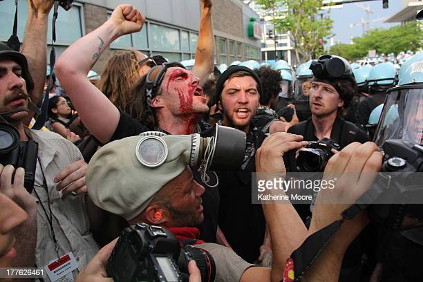 CONTENT] An injured man continues to chant despite being bloodied by a large gash over his eye during a standoff between police and protesters at the...