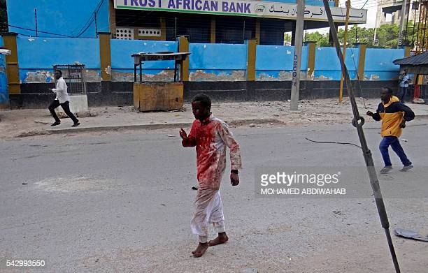 An injured man covered with blood runs away from the scene of a car bomb attack claimed by AlQaedaaffiliated Shabaab militants which killed at least...