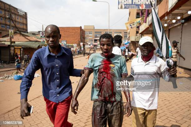 An injured man is led away after he was shot in the side of the face with a rubber bullet on November 18 2020 in Kampala, Uganda. Rioting began on...