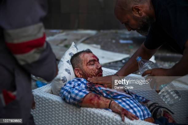An injured man is treated after a large explosion on August 4, 2020 in Beirut, Lebanon. Video shared on social media showed a structure fire near the...