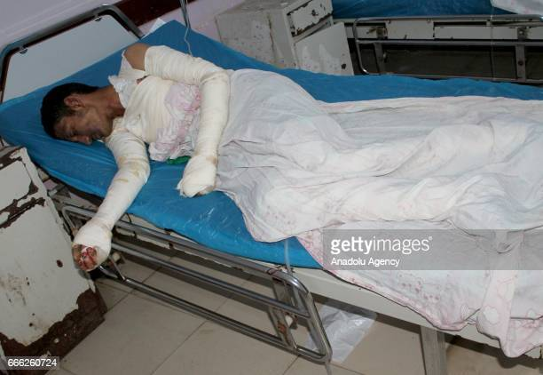 An injured man lays after receiving medical treatment in Al Hudaydah Yemen on April 8 2017 Yesterday unidentified attackers started a fire at a...