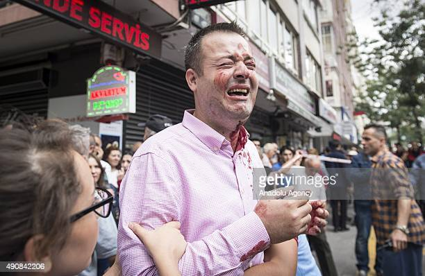 An injured man reacts at the scene after a fatal bus crash killing 12 people in Turkey's capital Ankara on October 1st 2015 Twelve people were killed...