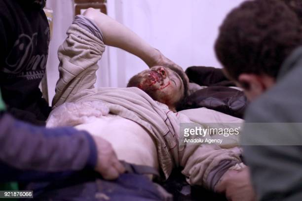 An injured man receives medical treatment at a field hospital as Assad Regime forces carried out airstrikes over Arbin town of the Eastern Ghouta...