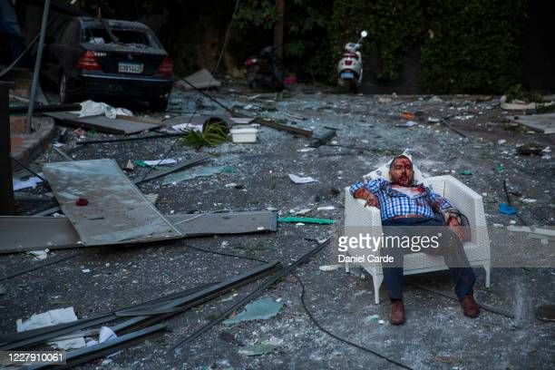 An injured man rests in a chair after a large explosion on August 4, 2020 in Beirut, Lebanon. Video shared on social media showed a structure fire...