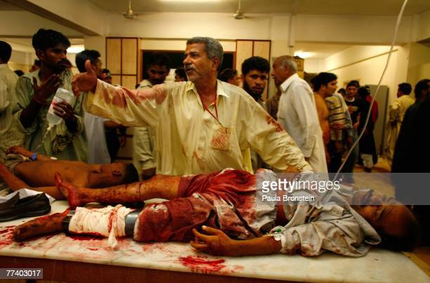An Injured men lays on a table waiting for medical care Karachi hospital after an apparent suicide car bomb blast was detonated near a vehicle...