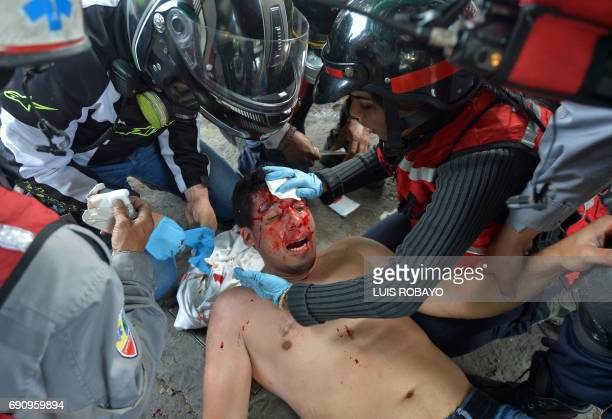 TOPSHOT An injured opposition activist is assisted during a protest against President Nicolas Maduro's government in Caracas on May 31 2017...
