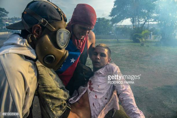 TOPSHOT An injured opposition demonstrator is assisted by fellow activists during clashes with riot police on May 31 2017 Venezuelan authorities on...