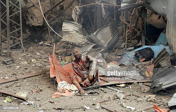 An injured Pakistani blast victim sits at the site of a bomb explosion in the busy Kissa Khwani market in Peshawar on September 29 2013 A bomb...