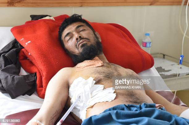 An injured Pakistani victim of cross border firing lies in a ward of a hospital in Quetta on May 5 2017 Pakistani and Afghan officials have accused...