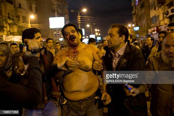 An injured protester in the street, protesting against the Egyptian President President Morsi outside the Presidential Palace on December 5, 2012 in Cairo,Eqypt.
