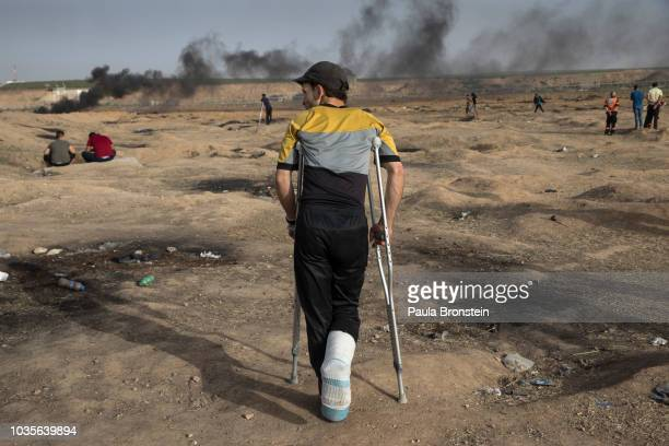 An injured protester is seen at the site near the IsraelGaza border n on May 252018 in Gaza city Gaza strip At least 110 Palestinians were killed...