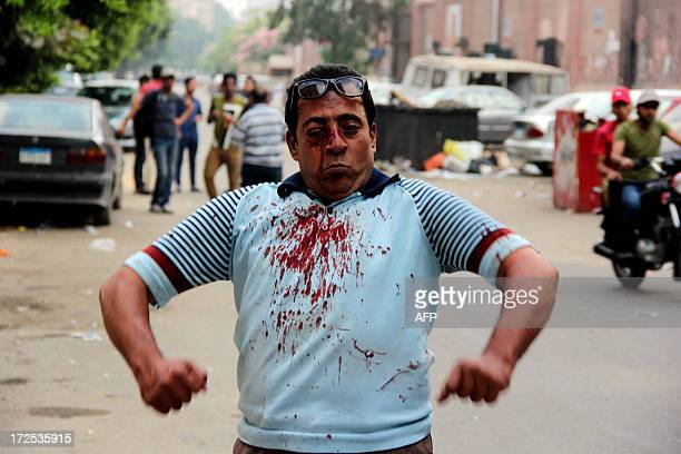 An injured protester reacts during clashes between residents and Muslim Brotherhood members and Egyptian President Mohamed Morsi supporters outside...
