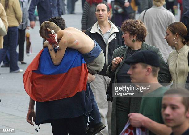 An injured Russian soccer fan is carried away from the Kremlin area on June 9 2002 in Moscow Russia Soccer fans rioted after learning that Russia...