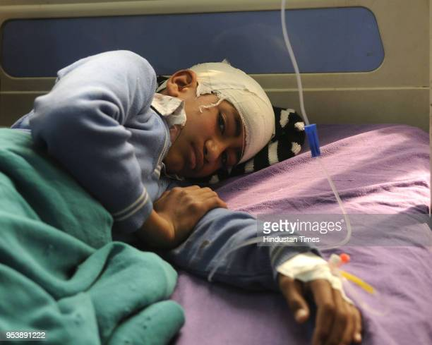 An injured student rests on bed in SMHS hospital after his school bus carrying 35 children was attacked by stonepelters in Zavoora area on May 2 2018...