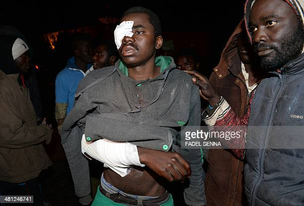 An injured SubSaharan immigrant is seen in a street in Rabat on March 29 after being deported back to Morocco from the Spanish port city of Melilia...