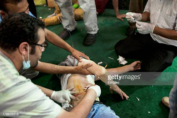 An injured supporter of deposed Egyptian President Mohammed Morsi is treated on the floor of the Fateh Mosque at Ramses Square on August 16 2013 in...