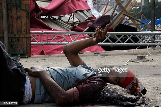 An injured supporter of Egypt's ousted president Mohamed Morsi gestures as he lies on the ground after a police crackdown on a protest camp held by...