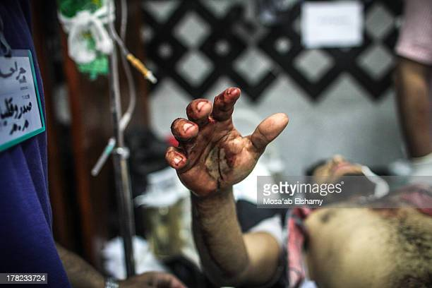CONTENT] An injured supporter of ousted president Mohamed Morsi lies in a makeshift hospital during clashes with security forces at Rabaa Adaweya...