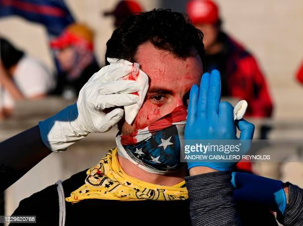 An injured supporter of US President Donald Trump is helped after being assaulted by an unknown assailant in Washington DC during a rally on November...