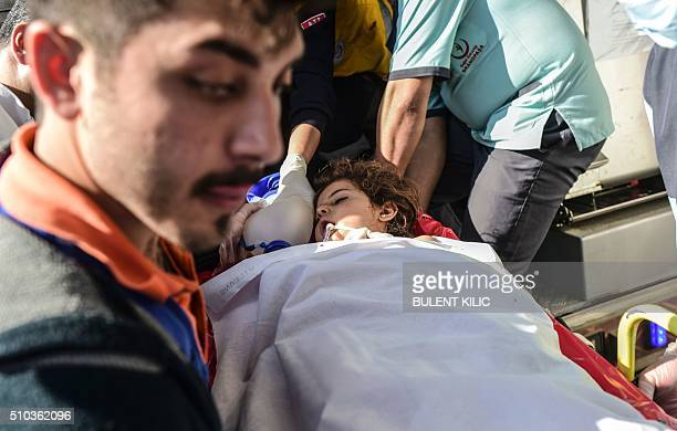 TOPSHOT An injured Syrian child arriving from northern Syria is carried to Kilis hospital in southcentral Turkey on February 15 2016 / AFP / BULENT...