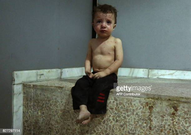 An injured Syrian child cries as he waits to receive treatment at a makeshift hospital in Jobar on August 5 following a reported government airstrike...