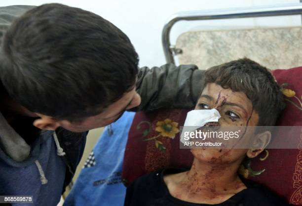 TOPSHOT An injured Syrian child lies on a bed at a makeshift hospital following a reported government shelling in the rebelheld besieged town of...