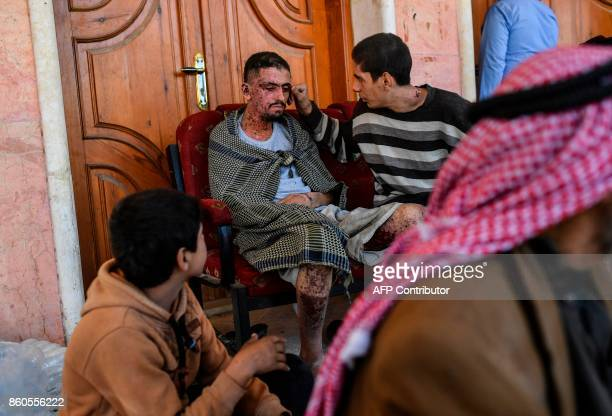 TOPSHOT An injured Syrian man looks on as civilians gather on the western front after fleeing the centre of Raqa on October 12 2017 Syrian Democratic...