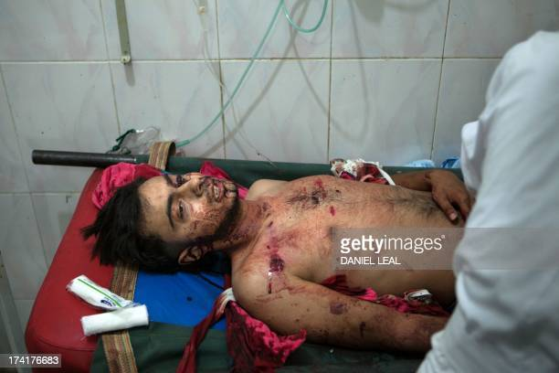 An injured Syrian man receives medical treatment at a hospital in the town of Ariha in the northwestern province of Idlib on July 21 2013 Syrian...