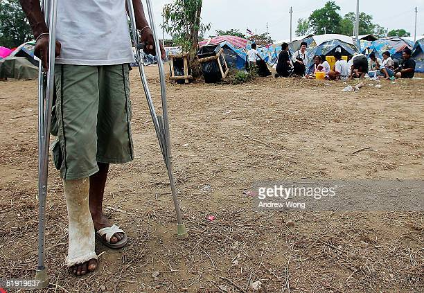 An injured tsunami survivor stands on crutches at a camp for displaced villagers on January 6 2005 in Takua Pa north of Phuket in Thailand UN...