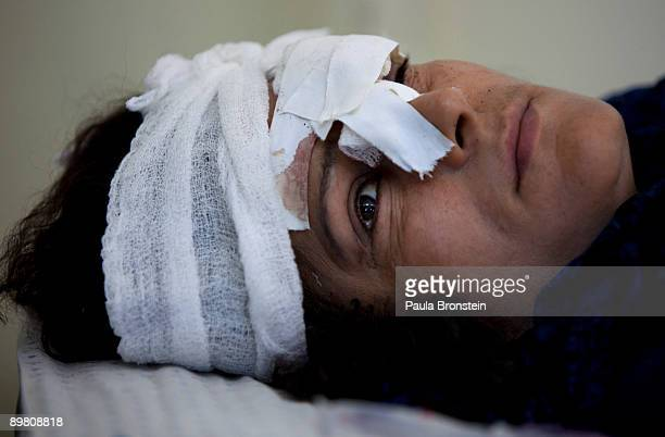 An Injured victim wears bandages on her head in the women's ward of a Kabul hospital after a suicide car bomb exploded near the main gate of the NATO...
