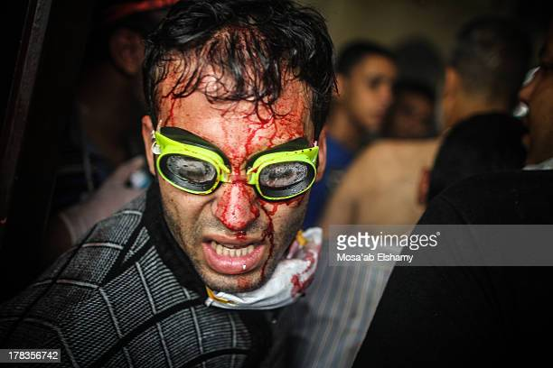 CONTENT] An injured volunteer is seen at the makeshift hospital of Rabaa during the clashes that broke out as security forces moved in to clear the...