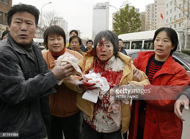 An injured woman is led away bleeding from a head wound after scuffles with police when residents of homes due to be demolished were forcefully...