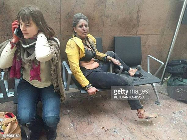 TOPSHOT An injured woman looks on as another speaks on her mobile phone following twin blasts at Brussels airport in Zaventem on March 22 2016 as...