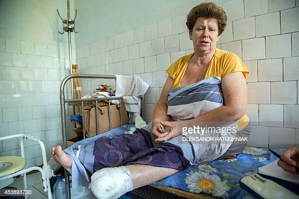 An injured woman sits on bed at a hospital in the small eastern Ukrainian city of Shastia in the Lugansk region on August 20 2014 At least 415800...
