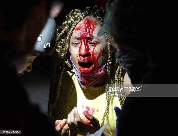An injured women is tended to near the White House during a protest of the killing of George Floyd on May 30 2020 in Washington DC Former Minneapolis...