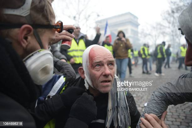 TOPSHOT An injured Yellow vest protestor looks on on the Champs Elysees in Paris on November 24 2018 during a protest against rising oil prices and...