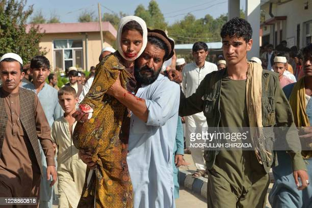 An injured youth is carried to a hospital following a car bomb attack that targeted a government building, in the Ghani Khel district of Nangarhar...