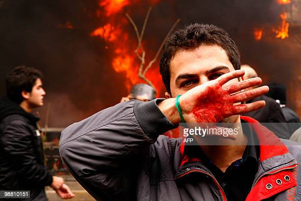 An Iranian opposition supporter covers his face with his bloodstained hand during clashes with security forces in Tehran on December 27 2009 At least...