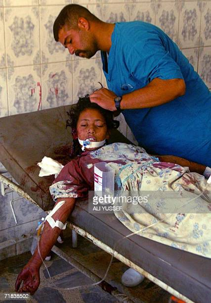 An Iraqi girl receives treatment at a hospital in the restive city of Baquba 75 kilometers northeast of Baghdad 10 September 2006 Four teenagers were...