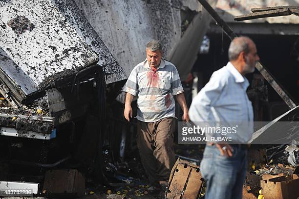 An Iraqi man with bloodstained clothes walks past the wreckage of a truck following a bomb explosion that targeted a vegetable market in Baghdad's...