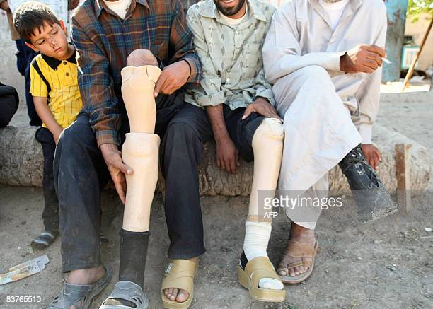 An Iraqi mine victim slips his stump into a prosthetic leg as he sits next to other victims in the village of Jurs alMileh in the Tanuma area of...