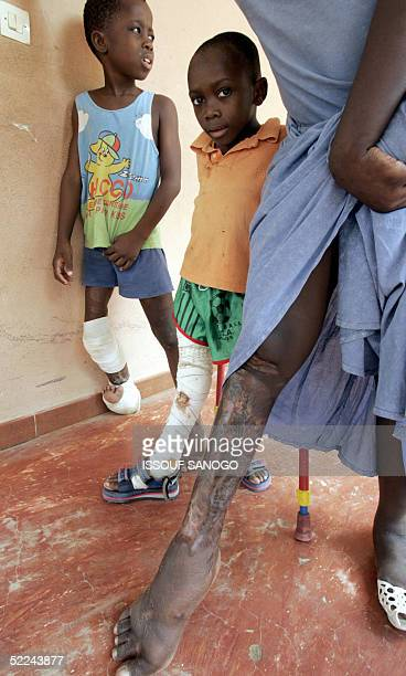 An Ivorian woman suffering from the Buruli ulcer walks with two children 24 February 2005 in the anti Buruli ulcer center of Angre, in Abidjan. The...