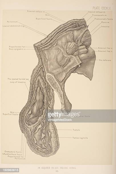 An oblique inguinal hernia is a hernia which passes through the internal abdominal ring follows the spermatic cord in an oblique direction, 1903....