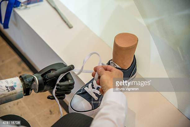 An observer ties a shoe using the ilimb quantum by Touch Bionics on June 22 2015 in Lyon France The device an electrically powered prosthetic hand...
