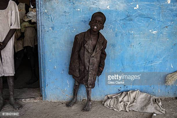 An orphaned child in Malakal who fled the now destroyed tent camp areas in the UN Protection of Civilian sites of Malakal in the northern conflict...