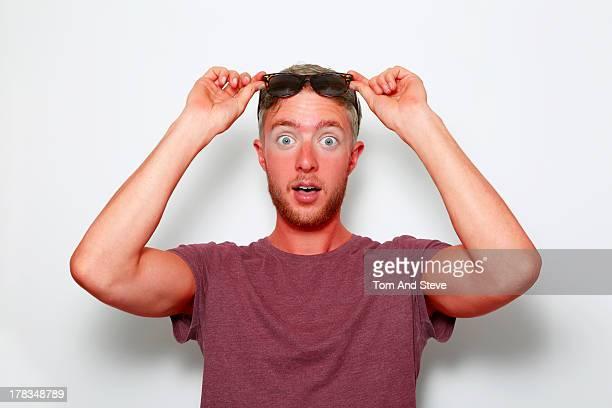an pained man with sunburn - coup de soleil photos et images de collection