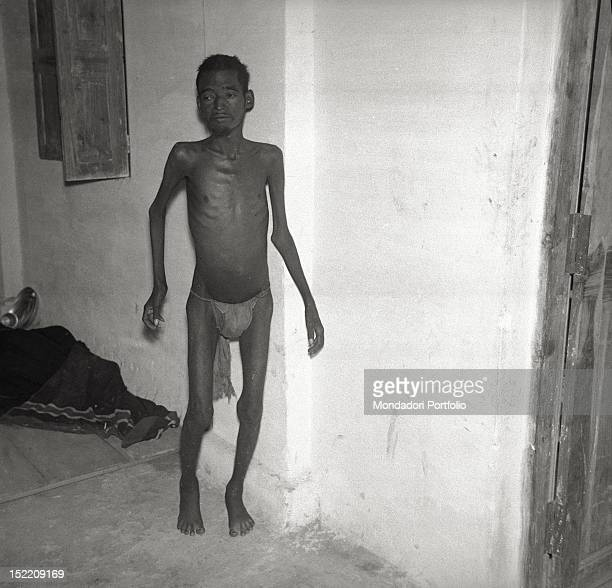 An underfed ill almost naked boy in the hospital of the Salesian community of Fr Orfeo Mantovani Madras February 1966