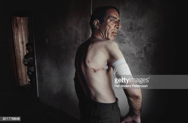 An unidentified man shows his scars after surviving a massacre in his hometown of Suva Reka Kosovo He was the only survivor after he was placed on...