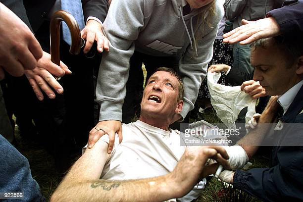 An unidentified man smokes a cigarette as he receives first aid treatment after being shot with a Police Service of Northern Ireland baton round July...